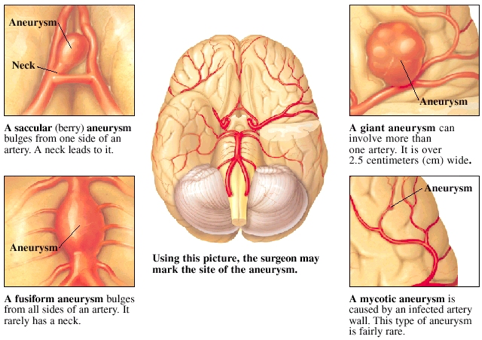 brain aneurysm | gwinnett medical center, Human Body